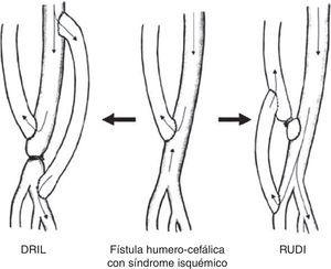 Diferenciación técnica entre el DRIL (distal revascularization with interval ligation) y el RUDI (revascularization using distal insertion).