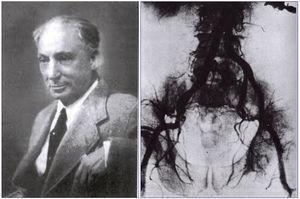 Reynaldo Dos Santos (año 1978) y su aortografía (año 1929).