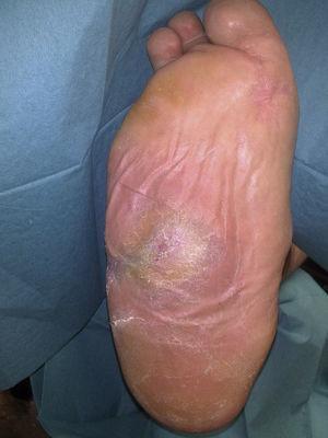 Úlcera cicatrizada tras 8 meses de tratamiento.