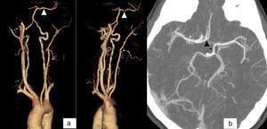 a) 3DVR en la que se observa la ausencia de la arteria carótida interna (flecha blanca) y repermeabilización de arteria cerebral media (ACM) desde el sistema vertebrobasilar (cabeza de flecha blanca), y b) corte axial en se observa la repermeabilización de ACM desde ACoPost (flecha negra), y de la arteria cerebral anterior (ACA) desde la arteria comunicante anterior (ACoAnt) (cabeza de flecha negra).