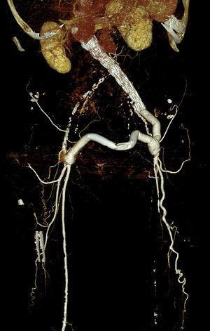 Angio-TC en la que se observa endoprótesis aorto-monoilíaca izquierda, bypass ilíaco-femoral izquierdo y bypass fémoro-femoral cruzado izquierdo-derecho expuesto.