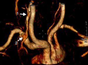 FAV carótida-yugular derecha. 1: punto de comunicación entre la arteria carótida común y la vena yugular interna derechas; 2: llenado de la vena yugular interna derecha en fase arterial.