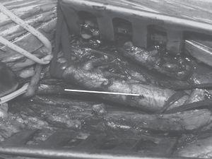 Sobre una imagen quirúrgica, se muestra mediante línea recta la arteriotomía longitudinal realizada por De Bakey, y mediante asteriscos la arteriotomía transversal realizada por Cooley.