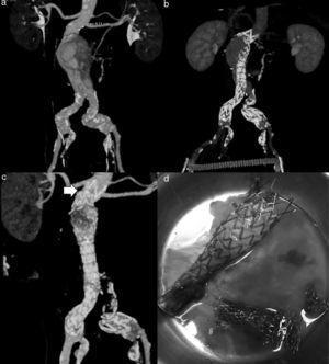a) Aneurisma yuxtarrenal; b) Endoprótesis con fuga Ia; c) Endoprótesis más stent XL proximal (flecha) con fuga Ia, y d) Material endoprotésico explantado.