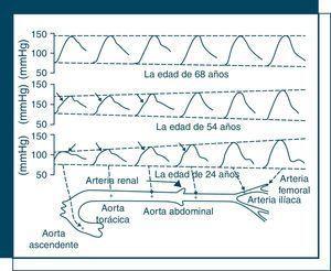 Cambio de la onda de presión de tronco aórtico y arterias periféricas en años 24, 54 y 68. Las flechas en las ondas señalan la primera inflexión sistólica correspondiente a la onda reflejada, que tiende a ocurrir antes según avanza la edad.