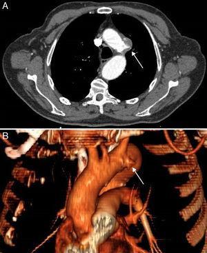 Angio-TAC con corte axial (A) y su reconstrucción en 3D (B), que muestra úlcera penetrante de aorta torácica con diámetro máximo de 29mm en la zona correspondiente al nervio laríngeo recurrente izquierdo.