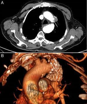 Angio-TAC con corte axial (A) y su reconstrucción en 3D (B), que muestra disminución del tamaño de la úlcera penetrante con disminución de diámetro máximo a 20mm, sin evidenciarse endofugas.