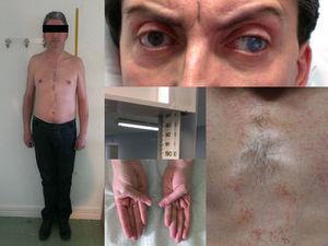 Rasgos fenotípicos del paciente: talla alta, alargamiento de huesos largos, pectus excavatum, hiperlaxitud ligamentosa, luxación de cristalino y estrabismo.