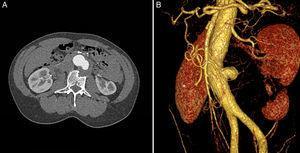 A) Corte axial de angiotomografía diagnóstica donde se observa seudoaneurisma en aorta abdominal infrarrenal de 50mm de diámetro máximo, con trombo mural y erosión del cuerpo vertebral L2. B) Reconstrucción tridimensional donde se observa seudoaneurisma con afectación de una zona focal de la aorta infrarrenal.