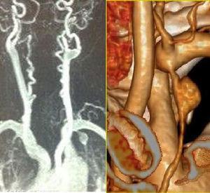 En la izquierda de la imagen se observa, además del aneurisma de la arteria mamaria interna, la tortuosidad de vertebrales y carótidas, con zonas de estenosis y dilataciones postestenóticas. A la derecha se observa una reconstrucción del aneurisma.