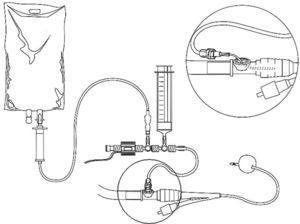 Sistema cerrado con sonda Foley para la monitorización de la PIA intravesical.