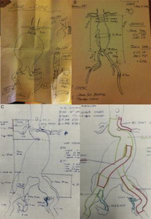 Modelos reales de planificación en terapia EVAR, recomendamos que este documento permanezca siempre visible durante el procedimiento. A) Situación de urgencia sin disponibilidad de DICOM (no center-lumen-line). B) EVAR programado y disponibilidad de DICOM (con center-lumen-line y cálculo de longitudes). C) EVAR complejo con técnica de chimenea en arteria renal izquierda, embolización hipogástrica izquierda y endoprótesis ilíaca ramificada (IBE) derecha. Cortesía Dr. N Mosquera.