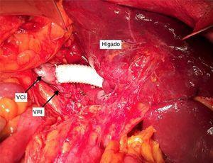 Campo operatorio: prótesis anillada de PTFE con anastomosis distal oblicua a vena cava inferior preservando el desagüe de la vena renal izquierda. VCI: vena cava inferior; VRI: vena renal izquierda.
