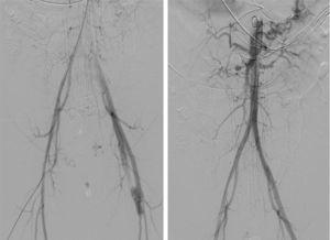 Arteriografía realizada inmediatamente antes del sangrado de la arteria ilíaca izquierda: nótese la ausencia de sangrado, la existencia de fístula arteriovenosa femoral izquierda y las alteraciones de las arterias renales.