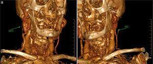 Reconstrucción tridimensional de la TAC: a) aneurisma de la vena yugular externa derecha permeable; b) trombosis del aneurisma de la vena yugular externa izquierda.
