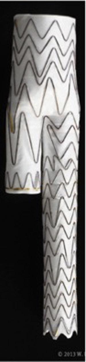 Dispositivo ramificado para la arteria hipogástrica de Gore (IBExcluder).