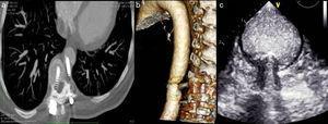 a) Angio-TC: imagen en corte transversal donde se observa cómo el tornillo izquierdo protruye hacia la luz aortica. b) Angio-TC: reconstrucción 3D donde visualizamos la aorta en sentido longitudinal y la impactación del tornillo a nivel de T10. c) Eco-transesofágico donde se visualiza cuerpo extraño extravascular que perfora la capa adventicia de la aorta, comprimiendo las capas media e íntima sin llegar a romperlas.