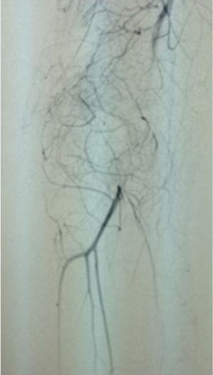 Arteriografía de trombosis de arteria poplítea tras desepifisiodesis.