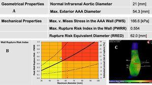 Paciente con riesgo de rotura incrementado según el software A4clinics. A) Propiedades geométricas y mecánicas del aneurisma en estudio tras el análisis de elementos finitos. B) Gráfico que representa del aumento del PWRR (riesgo de rotura pico de pared) y RRED (diámetro equivalente de riesgo de rotura). C) Reconstrucción tridimensional del aneurisma con escala de grises.