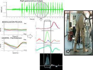 Combinación de las gráficas cinéticas, EMG y curva Doppler.