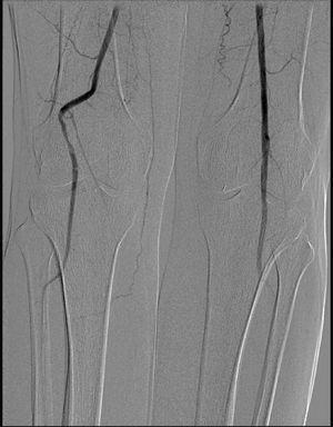 Arteriografía de miembros inferiores: Desviación de la arteria poplítea derecha: signo de la «pata de perro».
