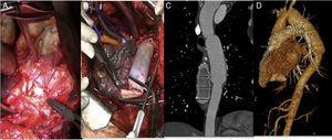 Explante de endoprótesis torácica infectada y reconstrucción aórtica utilizando parche de pericardio bovino (PPB). A) Aortotomía y exposición del dispositivo infectado visualizando su desintegración de la pared y material purulento contiguo. B) Reconstrucción aórtica utilizando PPB tubulizado; realizada anastomosis proximal. C y D) Reconstrucción angiográfica a 4 años de seguimiento sin signos de infección ni degeneración aneurismática.
