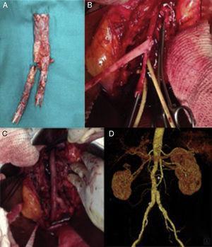 Explante de endoprótesis bifurcada infectada y reconstrucción utilizando venas femorales superficiales (VFS). A) Endoprótesis infectada explantada. B) VFS preformadas en «pantalón», realizada la anastomosis proximal. C) Reconstrucción aórtica «in situ». D) Reconstrucción angiográfica a 4 años de seguimiento, sin signos de complicación.