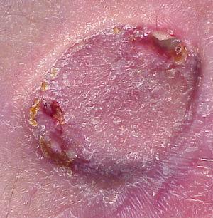Resultado tras la extirpación y colocación de injerto cutáneo.