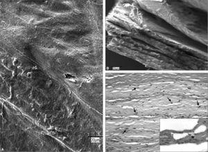 Surgisis®. A: imagen al microscopio electrónico de barrido de la superficie protésica (×20). B: sección transversal en la que puede apreciarse el espesor del biomaterial y las capas laminares que lo conforman (×200). C: detalle al microscopio óptico (HE, ×200) de un corte transversal, en el que son claramente visibles núcleos celulares (flechas) entre las fibras de colágeno y vasos sanguíneos contenido hemático (asterisco). Recuadro inferior derecho: tricrómico de Masson(×630).