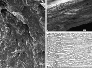 Permacol ®. A: superficie protésica (×500). B: en una sección transversal, el biomaterial muestra un aspecto compacto (×20). C: las fibras de colágeno se disponen en haces longitudinales y transversales, sin que se observen núcleos ni restos celulares en su estructura (HE, ×200).
