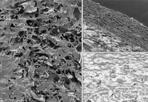 AlloDerm®. A: aspecto general de la superficie protésica (×200). B: espesor del biomaterial (×100). C: el estudio al microscopio óptico mostró una disposición irregular de los haces de colágeno, entre los que aparecían pequeñas fibras de elastina (flechas) (tricrómico de Masson, ×200)
