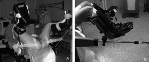 Perneras de bota tipo Allen. A: colocación en posición de litotomía. B: colocación en posición baja.