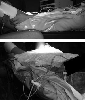 Colchoneta moldeable que fija al paciente al deshincharla (bean bag).