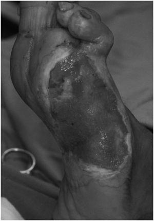 El mismo paciente. La herida tras desbridamiento totalmente rellenada con tejido de granulación después de 8 semanas de tratamiento con sistema de cierre asistido al vacío.