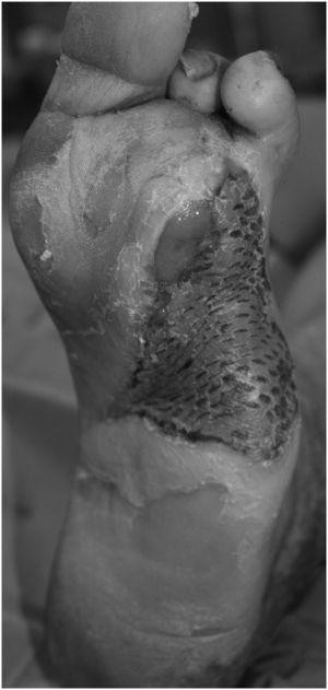 Herida cicatrizada con injerto de piel de espesor parcial.