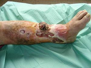 Úlcera venosa con neoformación.
