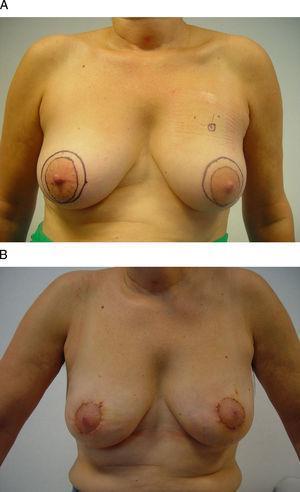 """Vía de acceso periareolar o """"round-block"""". Esta mujer de 48 años presenta un carcinoma infiltrante en la unión de los cuadrantes superiores de la mama izquierda que se ha tratado con quimioterapia neoadyuvante. A) Tras su localización radioquirúrgica se ha planificado un acceso periareolar para evitar una cicatriz visible en el escote. B) Se ha descentrado el círculo externo con el fin de elevar la posición del CAP, por lo que ha sido necesaria una acción quirúrgica en la mama contralateral para igualar la altura de ambos pezones y aréolas."""
