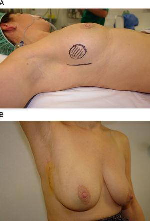Vía de acceso inframamario. Esta mujer de 46 años presenta un carcinoma infiltrante en la unión de los cuadrantes externos de la mama derecha. A) Tras recibir quimioterapia neoadyuvante se planificó un acceso a través de la porción lateral del surco inframamario. B) El resultado final es una cicatriz lateral imperceptible a la visión frontal y una incisión oculta por el surco inframamario.