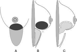 Confección de un colgajo adipofascial. A) La realización de un colgajo adipofascial se inicia con la planificación del área de despegamiento inframamario a la altura de la lesión mamaria. B) Posteriormente se realiza el tallado del colgajo adipofascial y se despega de la cubierta cutánea y de la pared torácica respetando su adherencia en el surco submamario de donde recibirá su irrigación. C) Finalmente, se traslada este colgajo a su nuevo alojamiento en el polo inferior de la mama para ocupar el defecto originado por la resección oncológica.