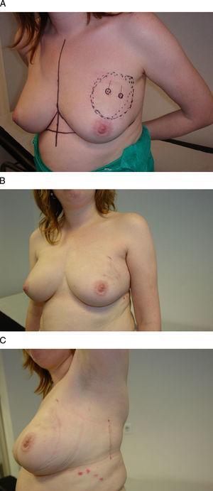 Acceso torácico lateral. Esta mujer de 35 años se diagnosticó de un carcinoma infiltrante multifocal en el cuadrante superoexterno de la mama izquierda. A) Tras el tratamiento neoadyuvante se planificó una resección del área afectada por el tumor, previamente marcada con arpones, y se procedió a su extirpación a través de una incisión lateral que, al mismo tiempo, posibilitó la disección del músculo dorsal ancho para la reconstrucción parcial del defecto. B y C) El resultado final es una mama sin deformidades y una incisión lateral oculta a la visión frontal.