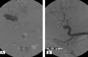 Arteriografía selectiva de arteria hepática por vía femoral derecha. A: relleno de la fístula preembolización. B: cierre de la fístula postembolización con espirales y cola hemostática.