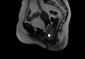 Corte sagital en T2. Las flechas marcan el crecimiento extraluminal de la lesión en topografía de recto inferior. El círculo señala la lesión hiperecogénica que define el trayecto fistuloso.