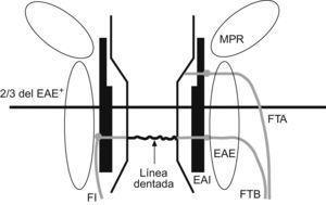 Esquema del canal anal. EAI: esfínter anal interno; EAE: esfínter anal externo; FI: fístula interesfintérica; FTA: fístula transesfintérica alta; FTB: fístula transesfintérica baja; MPR: músculo puborrectal. +Línea divisoria entre el canal anal alto y bajo.