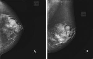 Caso 1. Mamografías de mama izquierda. A) Proyección craneocaudal. B) Proyección oblicua. Se aprecian zonas radiopacas distribuidas de manera dispersa por el tejido mamario que dificultan la identificación de posibles lesiones parenquimatosas.