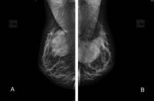 Caso 2. Mamografía bilateral de mama: A) Proyección oblicua en la mama derecha. B) Proyección oblicua en la mama izquierda. Se aprecia la inyección subglandular de ácido hialurónico, aumenta la proyección de la mama de manera uniforme pero sin alterar el parénquima mamario.