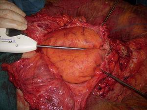 Posición de la primera malla a nivel intraabdominal con fijación mecánica (4 tackers reabsorbibles).