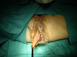 Extracción transanal de la pieza en el interior de una bolsa de plástico para extracción de vísceras usando una pinza de agarre laparoscópica.
