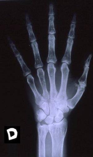 Radiografía de la mano derecha.