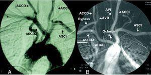 A) Origen anómalo de la arteria subclavia derecha en el estudio arteriográfico. B) Tras el procedimiento se observa el dispositivo oclusor, la trombosis de la arteria subclavia derecha desde origen hasta la salida de la arteria vertebral y permeabilidad del by-pass carótido-subclavio. ACCD: arteria carótida común derecha; ACCI: arteria carótida común izquierda; ASCDA: arteria subclavia derecha aberrante; ASCI: arteria subclavia izquierda; AVD: arteria vertebral derecha; AVI: arteria vertebral izquierda.