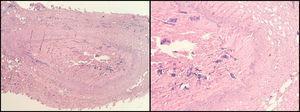 Tinción con hematoxilina-eosina. Vena safena humana ocluida por fibrosis (Archivo Dr. C. García-Madrid).